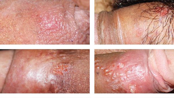 Fotos de herpes genital en el pene